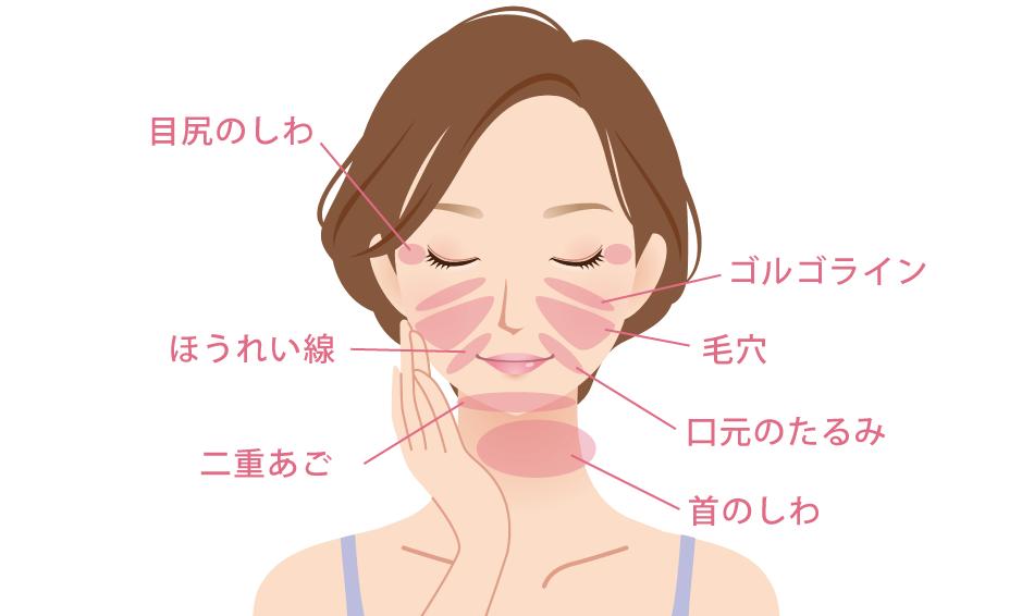 金山美容クリニックの糸リフト治療